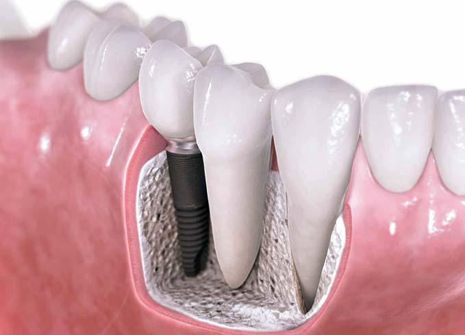 как вставить зубные виниры