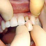 Сколько стоит вставить передний зуб: способы и цены