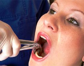 Лечение зуба с удалением нерва
