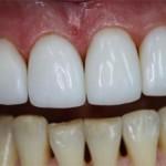Сколько стоит нарастить передний зуб: виды наращивания и цены