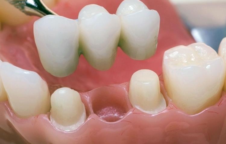 Металлокерамические мостовидные протезы