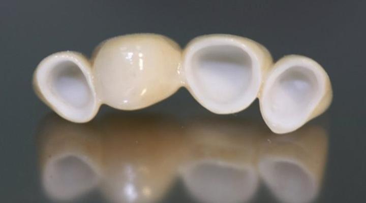 Цельнокерамические зубные мосты
