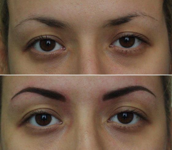 Метод волоскового наращивания