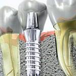 Сколько стоит наращивание зуба на штифт и из чего складывается цена