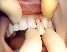 Сколько стоит вставить передний зуб