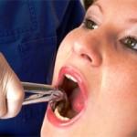 Сколько стоит вылечить зуб с удалением нерва