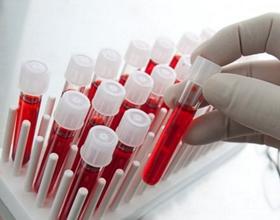 Cколько в среднем стоит сдать кровь на ВИЧ