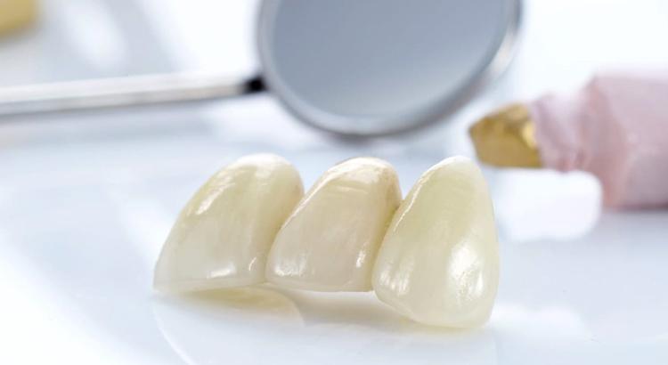 Пластмассовые зубные мосты