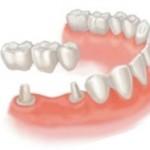 Сколько стоит поставить зубной мост и от чего зависит цена