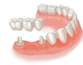 Сколько стоит поставить зубной мост