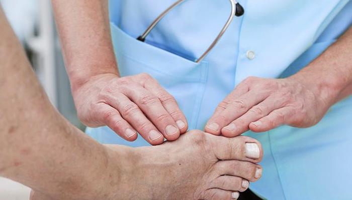 Ортопед смотрит ногу