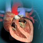 Сколько стоит замена клапана сердца — примерная стоимость операции