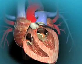 Сколько стоит замена клапана сердца