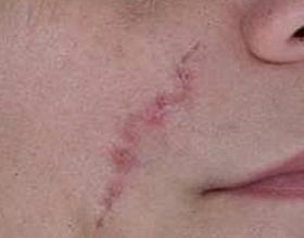 Сколько стоит убрать шрам на лице