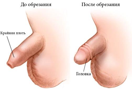 До и после обрезания