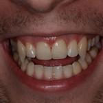 Сколько стоит сделать клыки у стоматолога и от чего зависит цена?
