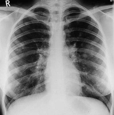 Результат рентгена
