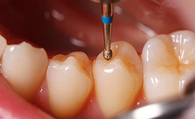 Шлифовка зуба