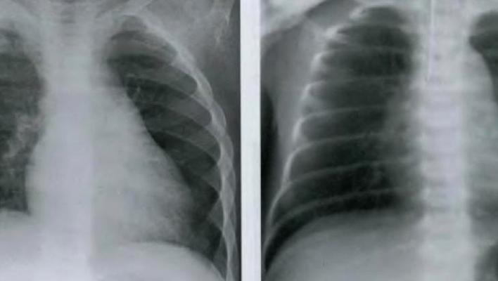 Снимки флюрографии