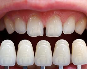 Сколько стоит сделать виниры на все зубы?