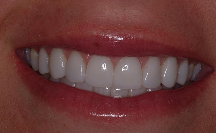 Виниры на всех зубах
