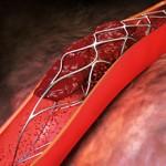 Сколько стоит поставить стент в сосуды сердца: особенности и цены