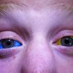 Сколько стоит залить глаза краской: особенности и цены