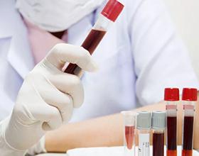 Сколько в среднем по России стоит сдать кровь на аллергены