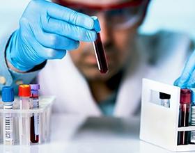 Сколько в среднем стоит сдать биохимический анализ крови