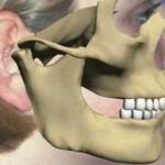 Сколько в среднем по стране стоит вправка челюсти?