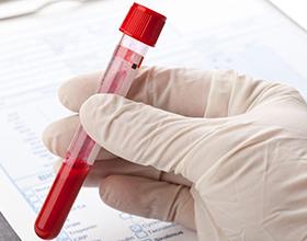 Сдача анализов на гормоны — сколько в среднем стоит?