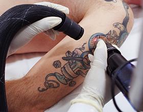 Сколько стоит лазерное удаление тату