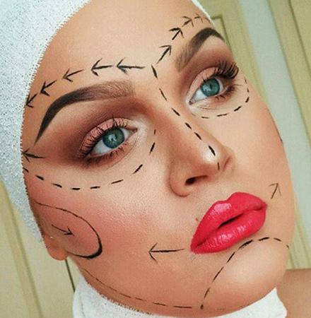 Перед процедурой подтяжки лица