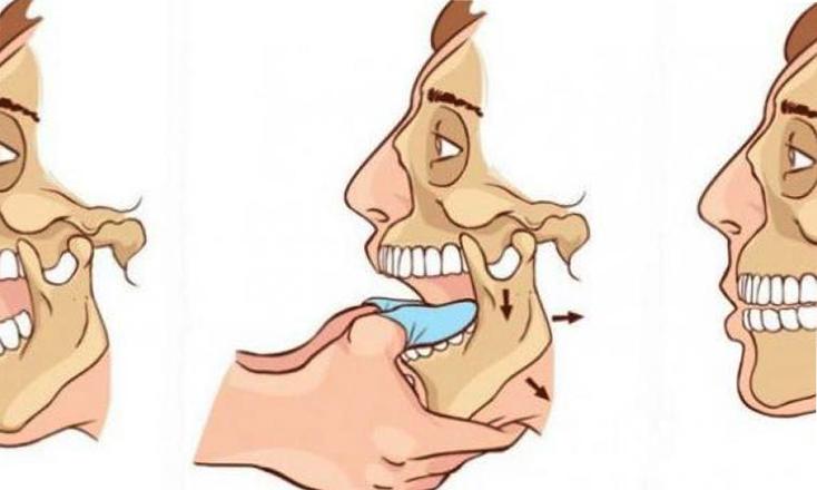 Вправка челюсти
