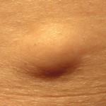 Сколько стоит удалить жировик (липому)?