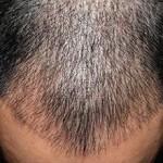 Во сколько обойдется пересадка волос у мужчин?
