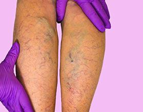 Сколько стоит операция на вены при варикозе?