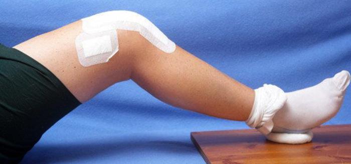 После эндопротезирования коленного сустава