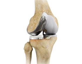 Сколько стоит эндопротезирование коленного сустава?