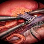 Сколько стоит операция по удалению почки?