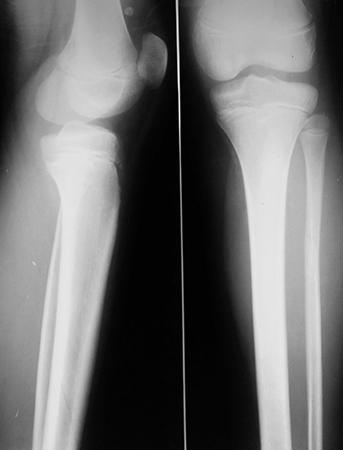 Снимок ног