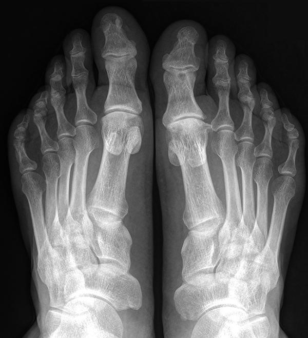 Рентген ног