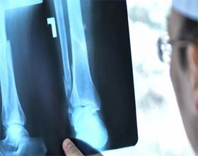 Сколько в среднем стоит рентген ноги и коленного сустава?