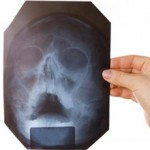 Сколько стоит рентген носа и носовых пазух?