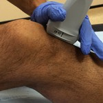 Сколько стоит УЗИ коленного сустава