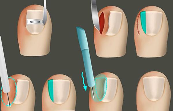 Процесс удаления вросшего ногтя