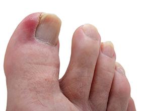 Сколько стоит удалить вросший ноготь?