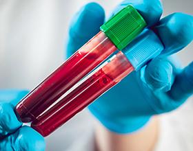 Сколько стоит сдать анализ на ферритин