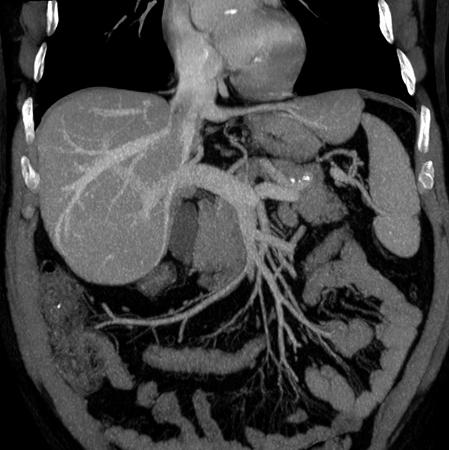 Снимок МРТ брюшной полости