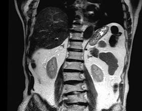 Сколько стоит сделать МРТ брюшной полости?